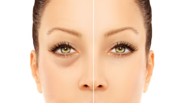 Dark Under Eye Circles How To Deal With Them